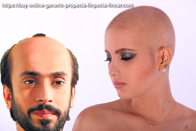 How hair loss differs in women and men?