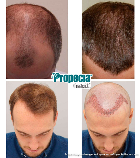 hair transplantation pros and cons
