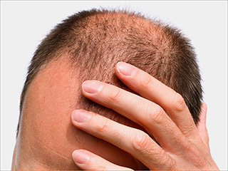 7 causes of male pattern baldness with solutions