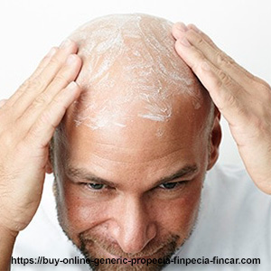 How to choose a proper cure for baldness in men