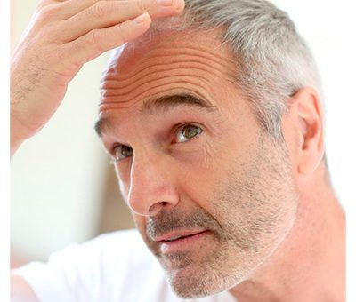 Early baldness prevention and treatment