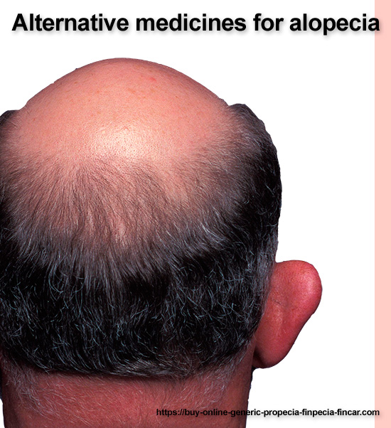 alternative medicines for alopecia