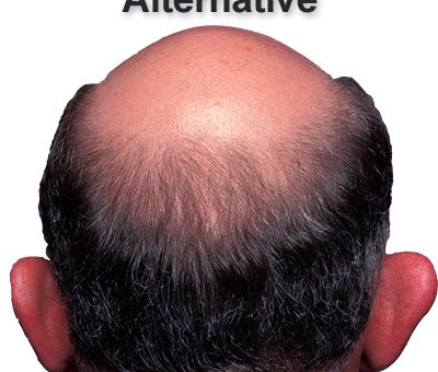 Alternative medicines for alopecia: Pros and cons