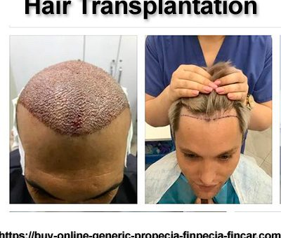 Hair transplantation in men. PART 2