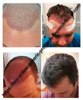 How does hair transplant surgery work? PART 1