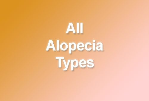 All alopecia types – from common to rare