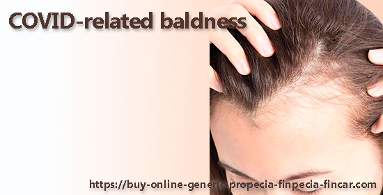 COVID-related baldness